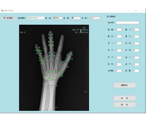 AI人工智能骨